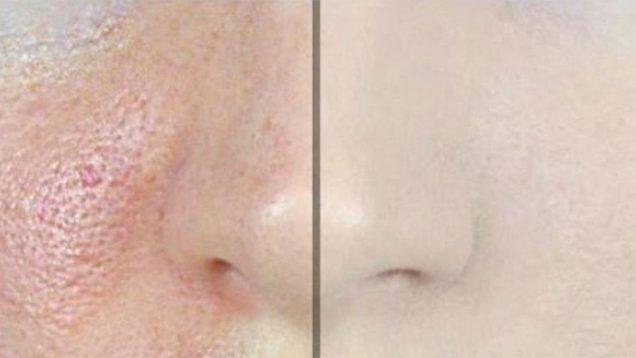 ۳-راه-درمان-خانگی-منافذ-باز-پوست-صورت-(درمان-خانگی-پوست-پرتغالی)-۱